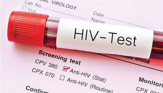 Early HIV detection vital against AIDS
